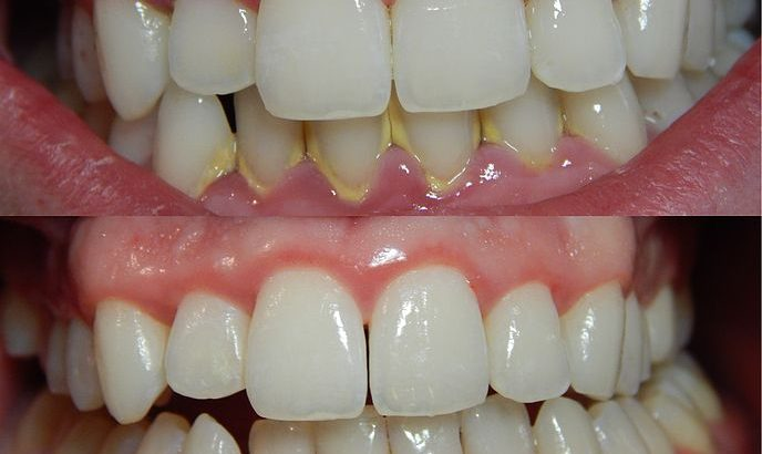 teeth bleaching by Dr Arora and Team