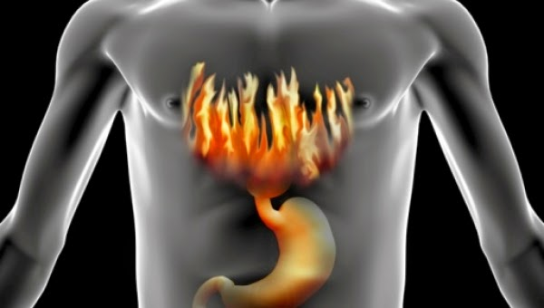 This is a article on Acid Reflux their Causes , Symptoms and Treatment by Dr Arora and Team